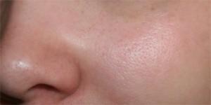 vad är porer